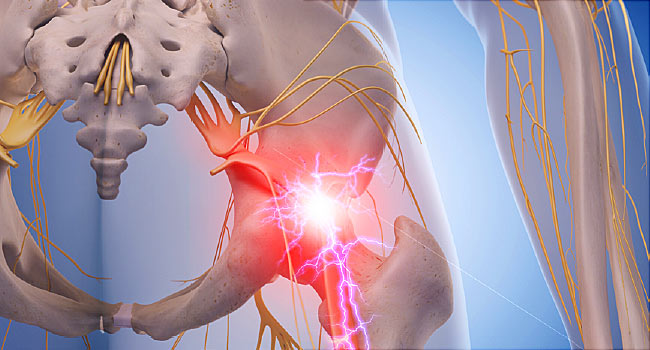6 Signs of Sciatica Pain You Can't Ignore