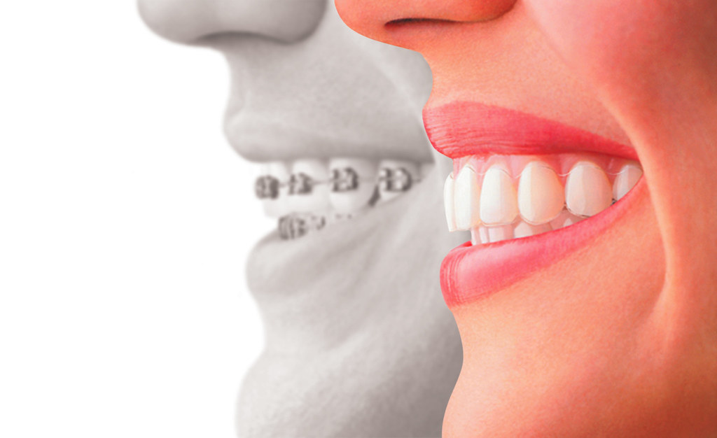 7 Compelling Reasons to Get Invisalign Instead of Braces